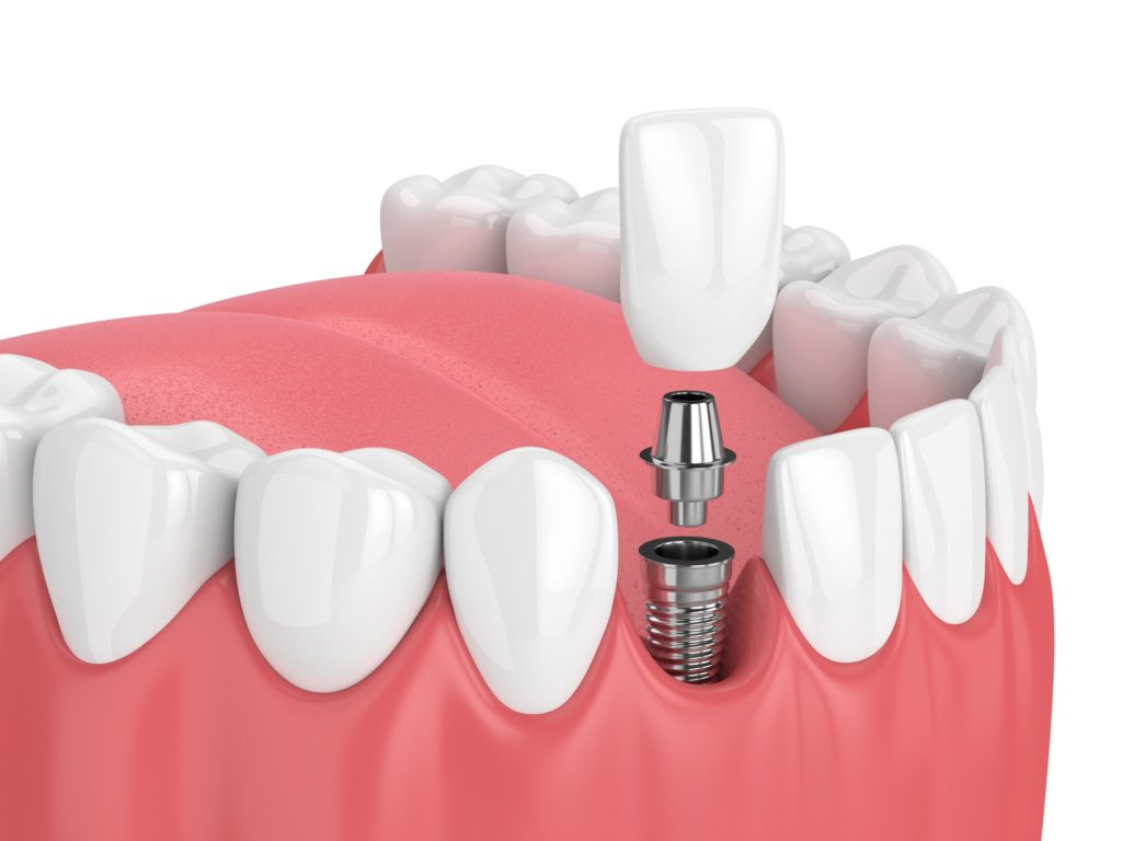 Illustration of a dental implant being placed into a row of teeth