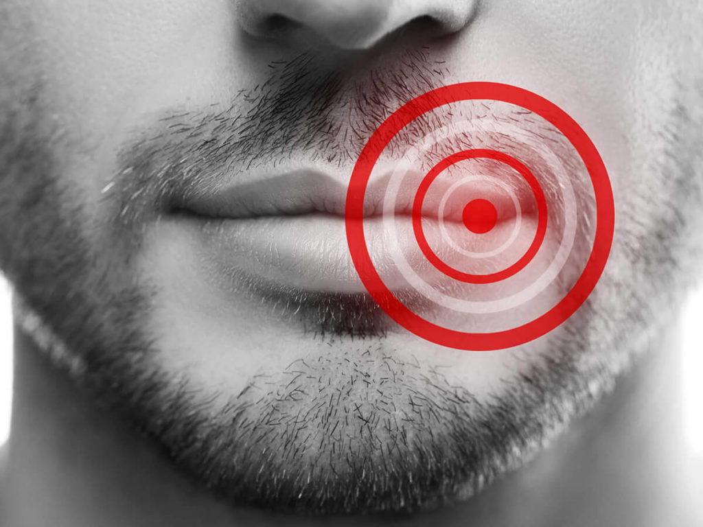 The lower half of a man's face with a red target over the corner of his lips signaling a cold sore