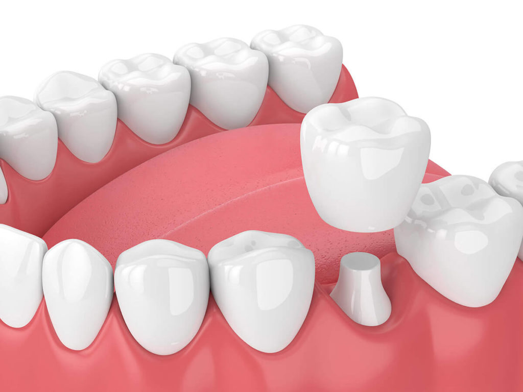Illustration of a dental crown being added to a row of teeth