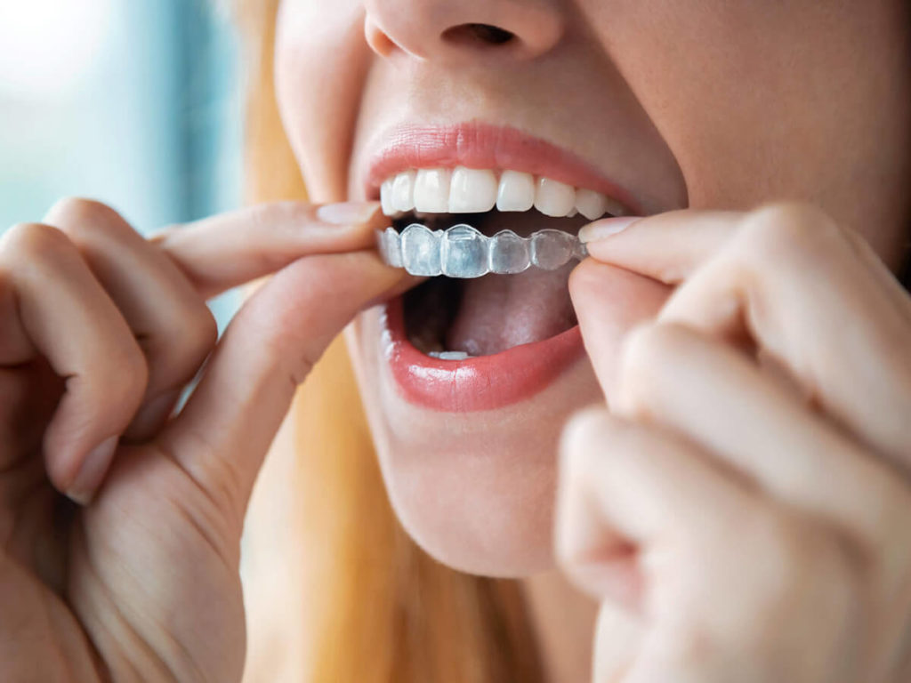 A woman puts a top tray of Invisalign clear aligners on her teeth